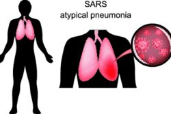 Атипичная пневмония: симптомы и лечение