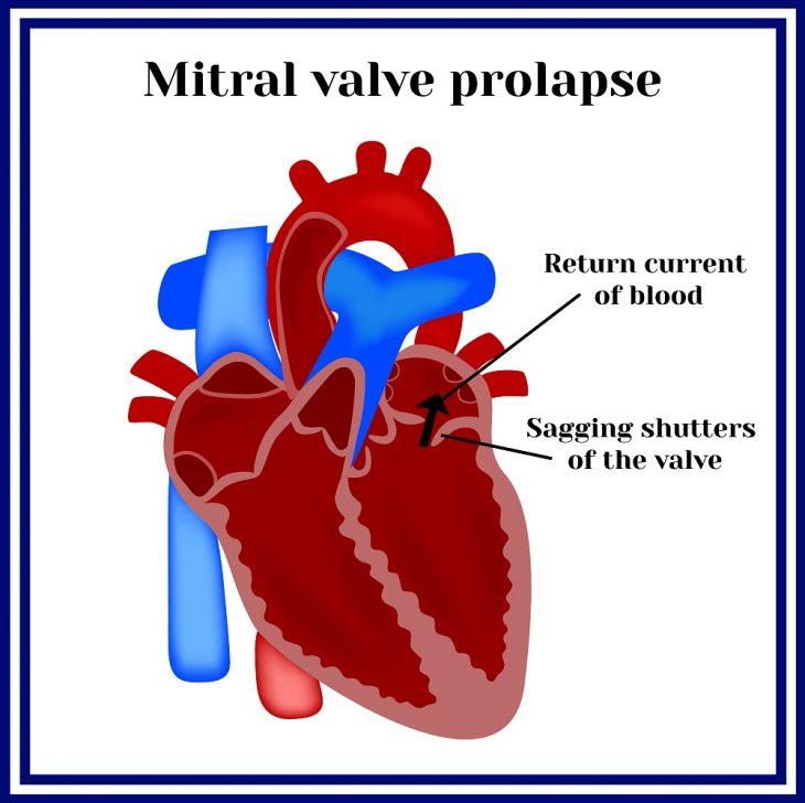 Пролапс митрального клапана сердца (ПМК): симптомы, степени, лечение
