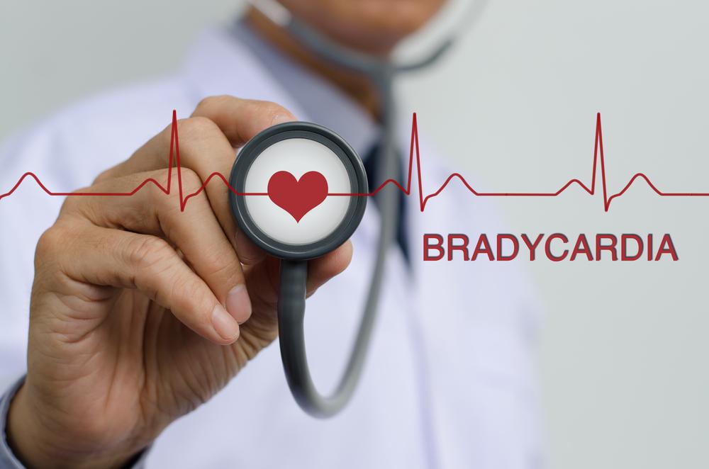 Причины брадикардии у молодых людей