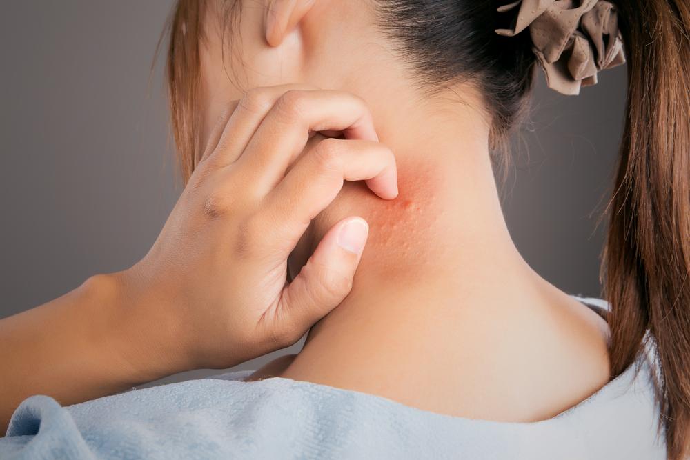 аллергия на людей бывает