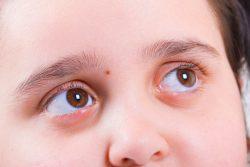 Халязион: лечение и последствия