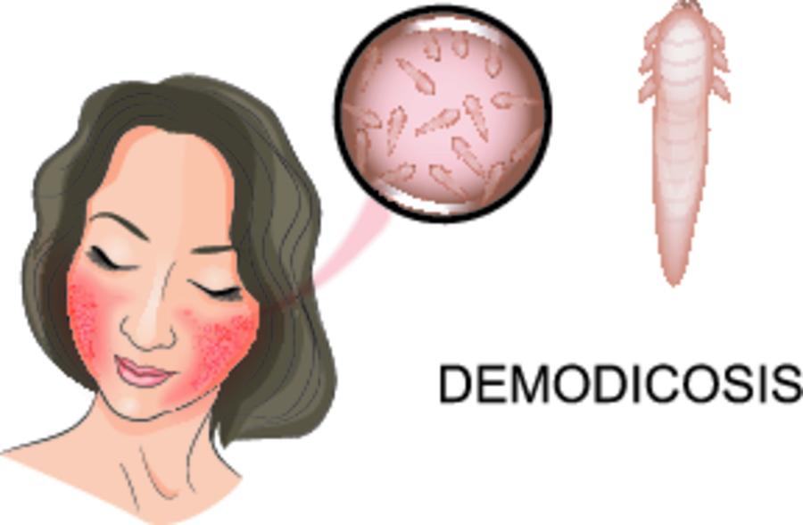 Демодекс - лечение, симптомы, причины