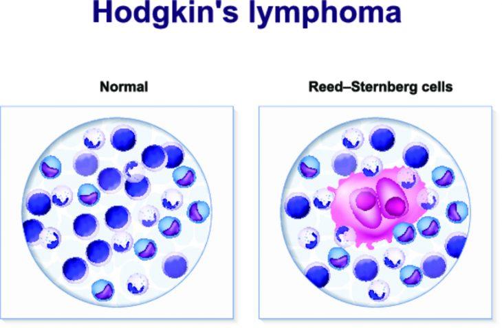 Лимфома симптомы у взрослых на шее