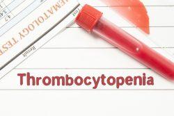 Тромбоцитопения: диета и лечение