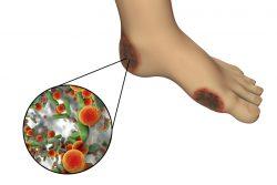 Диабетическая стопа: симптомы, лечение и профилактика