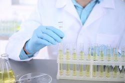 Биохимический анализ мочи: норма и патология