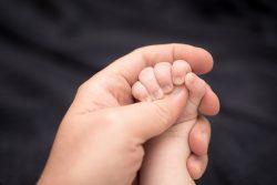Брахидактилия: причины и лечение