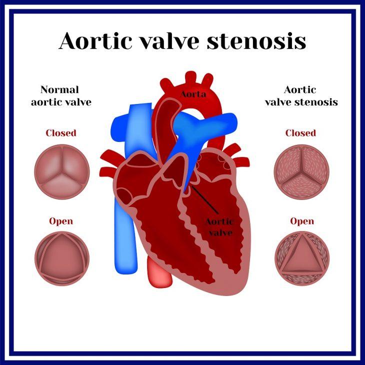 Строение аортального клапана сердца и почему возникают пороки АК