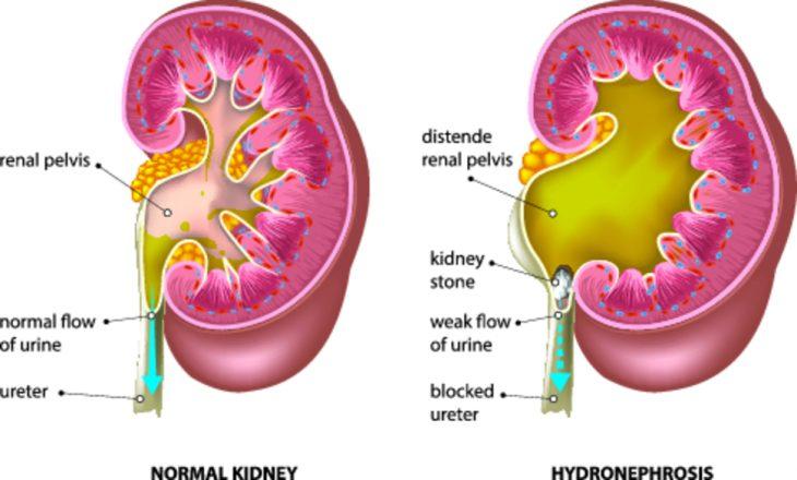 Причины, симптомы и лечение гидронефроза