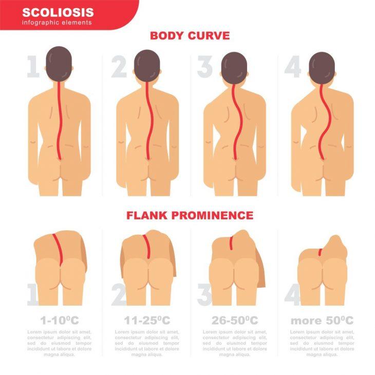 Сколиоз: симптомы, лечение и профилактика || Одна лопатка выпирает больше другой что делать