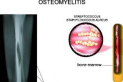 Признаки остеомиелита и лечение