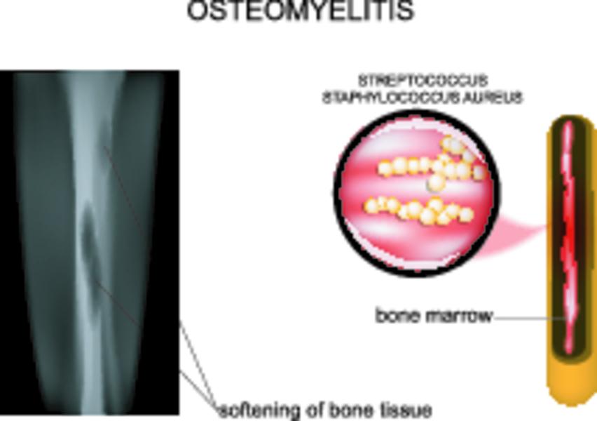 Что такое остеомиелит икак его лечить?
