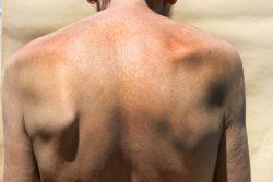 Сколиоз: симптомы, лечение и профилактика