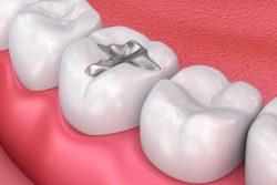 Виды зубных пломб – какую выбрать?