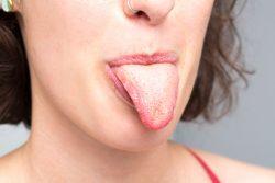 Болезни языка – симптомы, причины, лечение