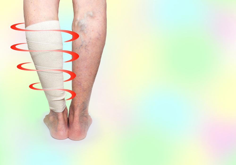 Какой врач лечит тромбофлебит нижних конечностей: к кому обращаться при тромбе в ноге?