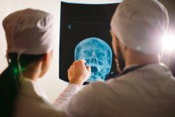 Рентген пазух носа: зачем и как проводят