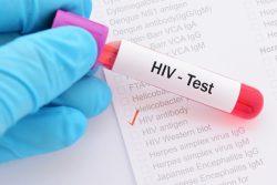 Современные методы диагностики ВИЧ-инфекции