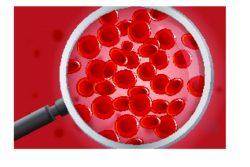 Признаки заболеваний крови