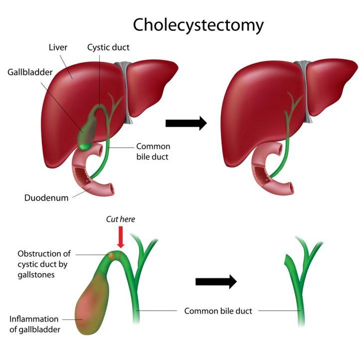 Постхолецистэктомический синдром: классификация, лечение и диета