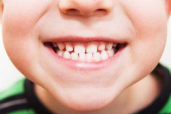 Прикус у детей: что делает зубы ребенка кривыми?
