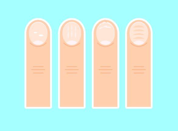 Фото псориаза ногтей
