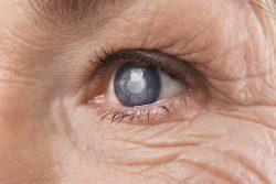 Катаракта: симптомы и лечение