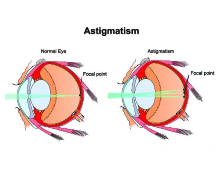 Астигматизм у детей. Причины, симптомы, виды и как лечить астигматизм у ребенка?