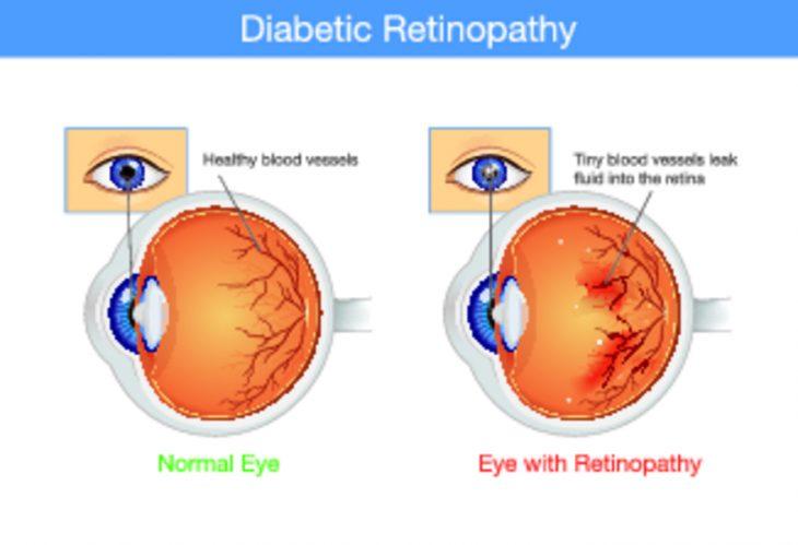 Лечение двоения в глазах при диабете