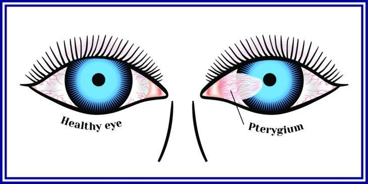 Птеригиум глаза: как не опоздать на операцию?
