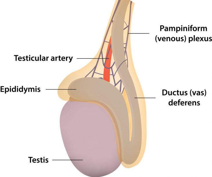 Киста яичка у мужчин: симптомы и лечение, причины и последствия заболевания