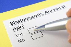 Бластомикоз: виды, симптомы, лечение