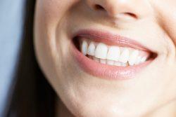 7 нужных привычек для здоровья и красоты зубов