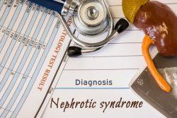 Нефротический синдром: что это такое, виды, причины