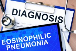 Эозинофильная пневмония: симптомы и лечение