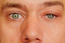 Воспаления века глаза — как лечить
