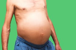 Асцит брюшной полости при онкологии: механизм, симптомы, принципы лечения