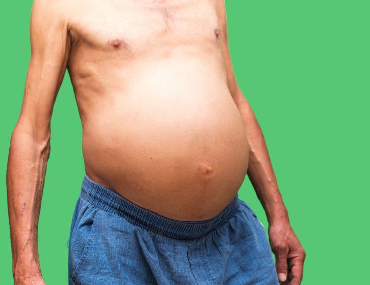 Болезни печени цирроз асцит
