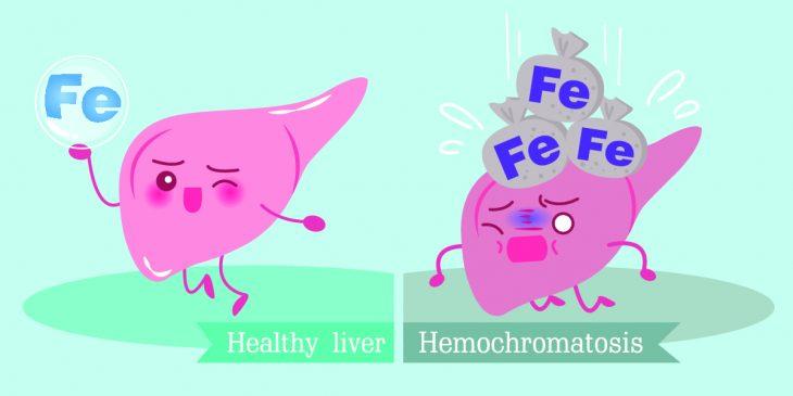 Гемохроматоз: симптомы, диагностика и лечение