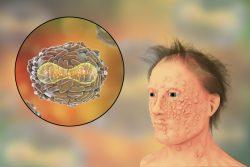 Натуральная оспа: возбудитель, клинические проявления