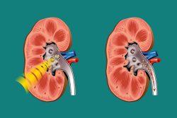 Литотрипсия камней почек: показания, противопоказания, методика