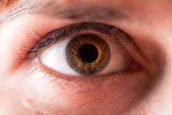 Атрофия глазного (зрительного) нерва: симптомы и лечение