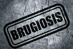 Бругиоз: эпидемиология, симптомы, лечение