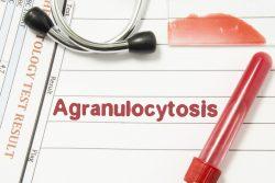 Агранулоцитоз: симптомы, лечение