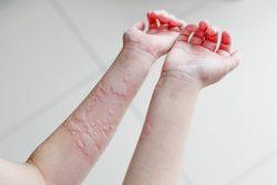 Холинергическая крапивница: причины, симптомы, лечение