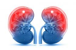 Подагрическая нефропатия: симптомы, принципы лечения