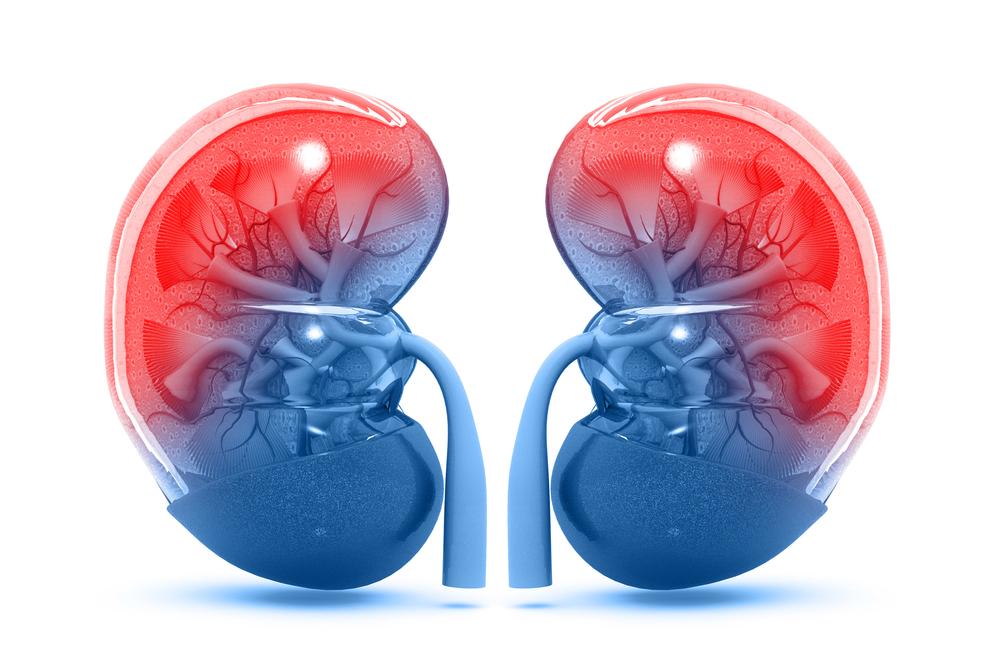 Виды, симптоматика и лечение подагрической почки