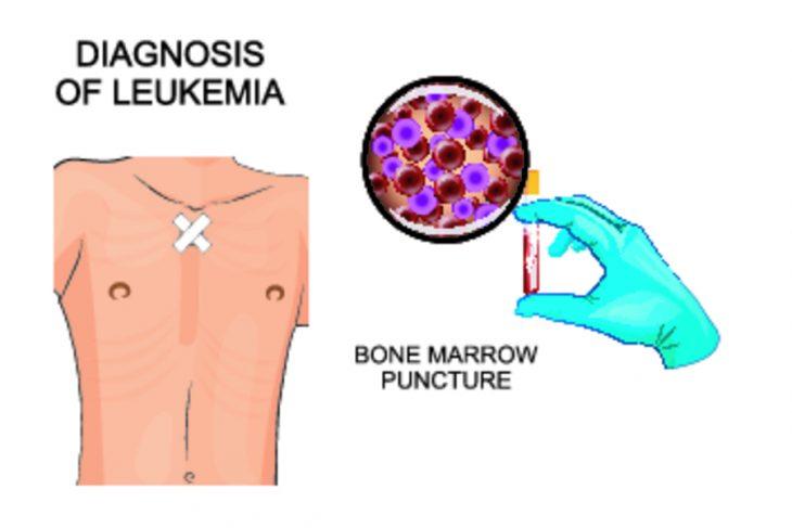 Анализ крови миелобластный лейкоз
