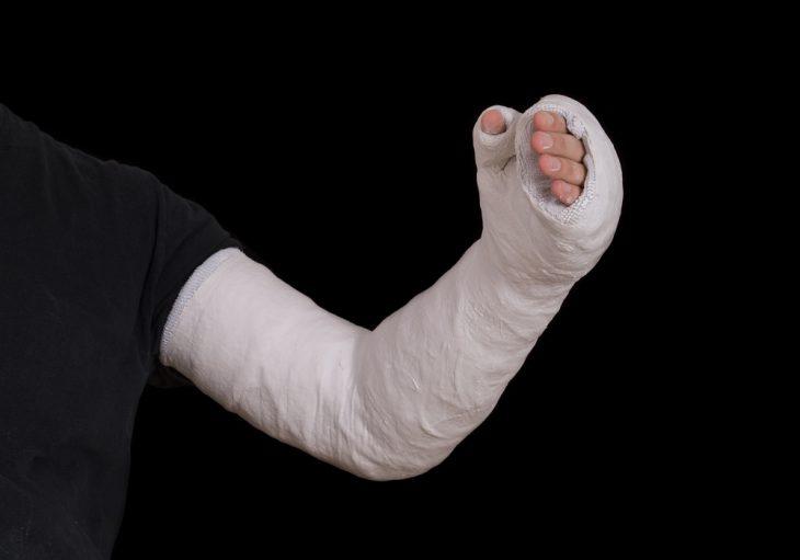 Как накладывать гипс при переломах?