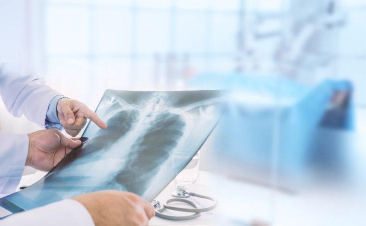 Опухоль Панкоста: особенности течения и лечения 314